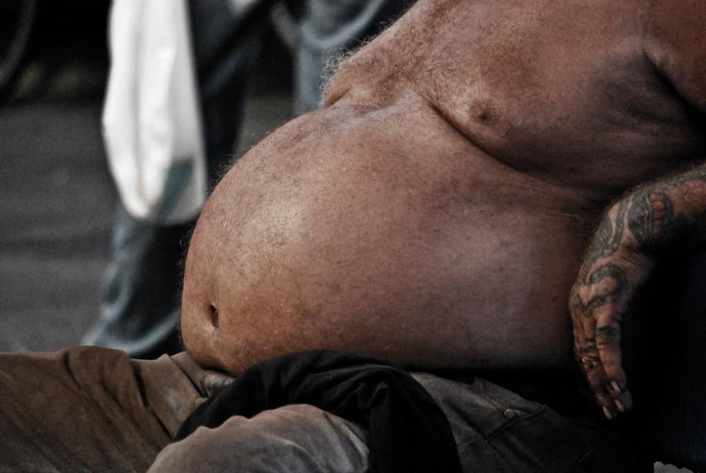 Висцеральный жир у мужчин: причины, решения и последствия